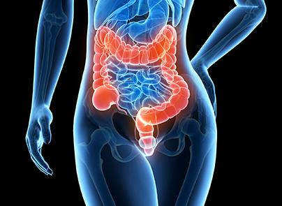 colorectal cancers drfuhrman com