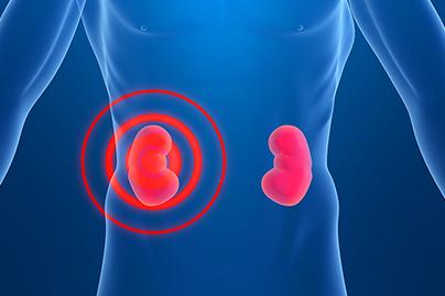 Kidney Failure | DrFuhrman com